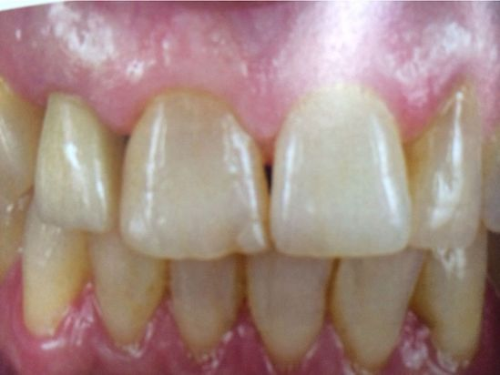 Clínica Dental Reyes Flamarique dientes implantados