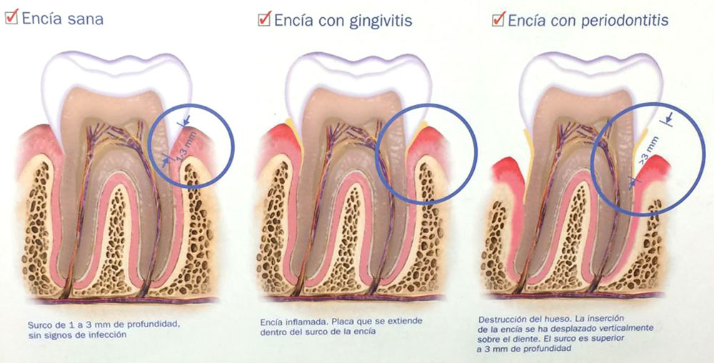 Clínica Dental Reyes Flamarique esquema dental